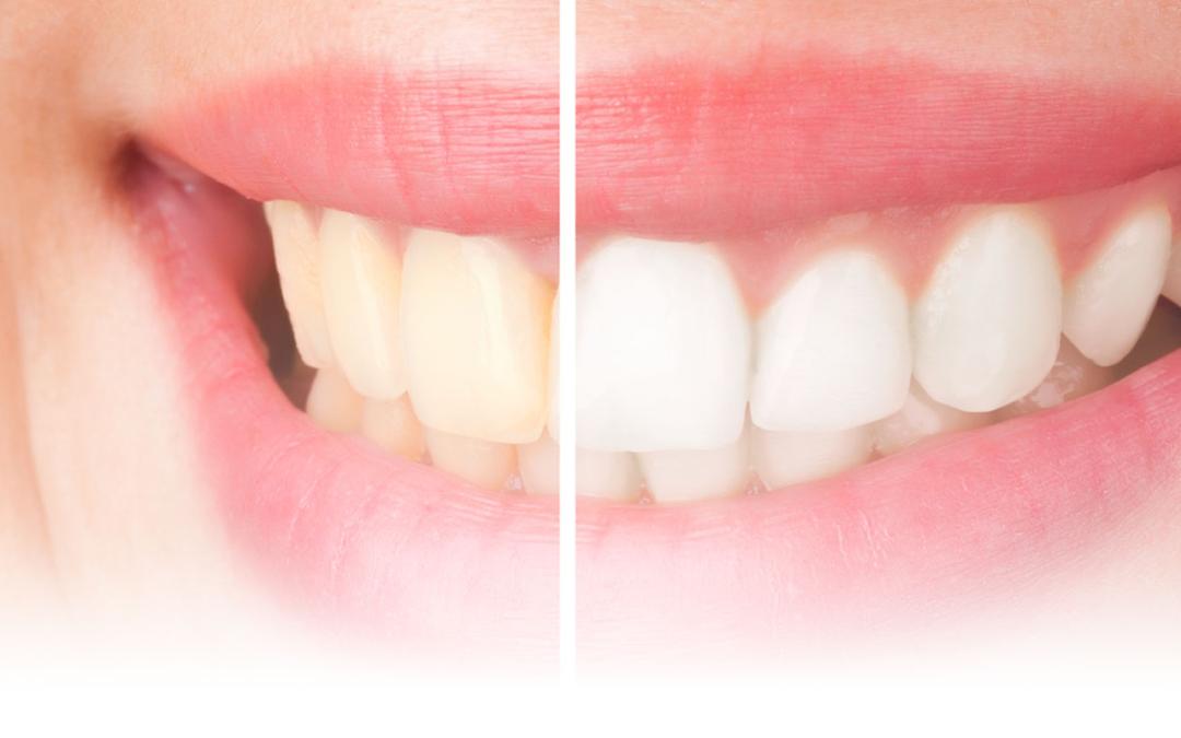 أهم الأسئلة حول عملية تبييض الأسنان بالليزر